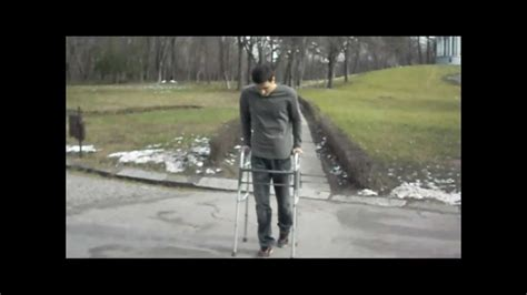 Walking after Incomplete Spinal Cord Injury - YouTube